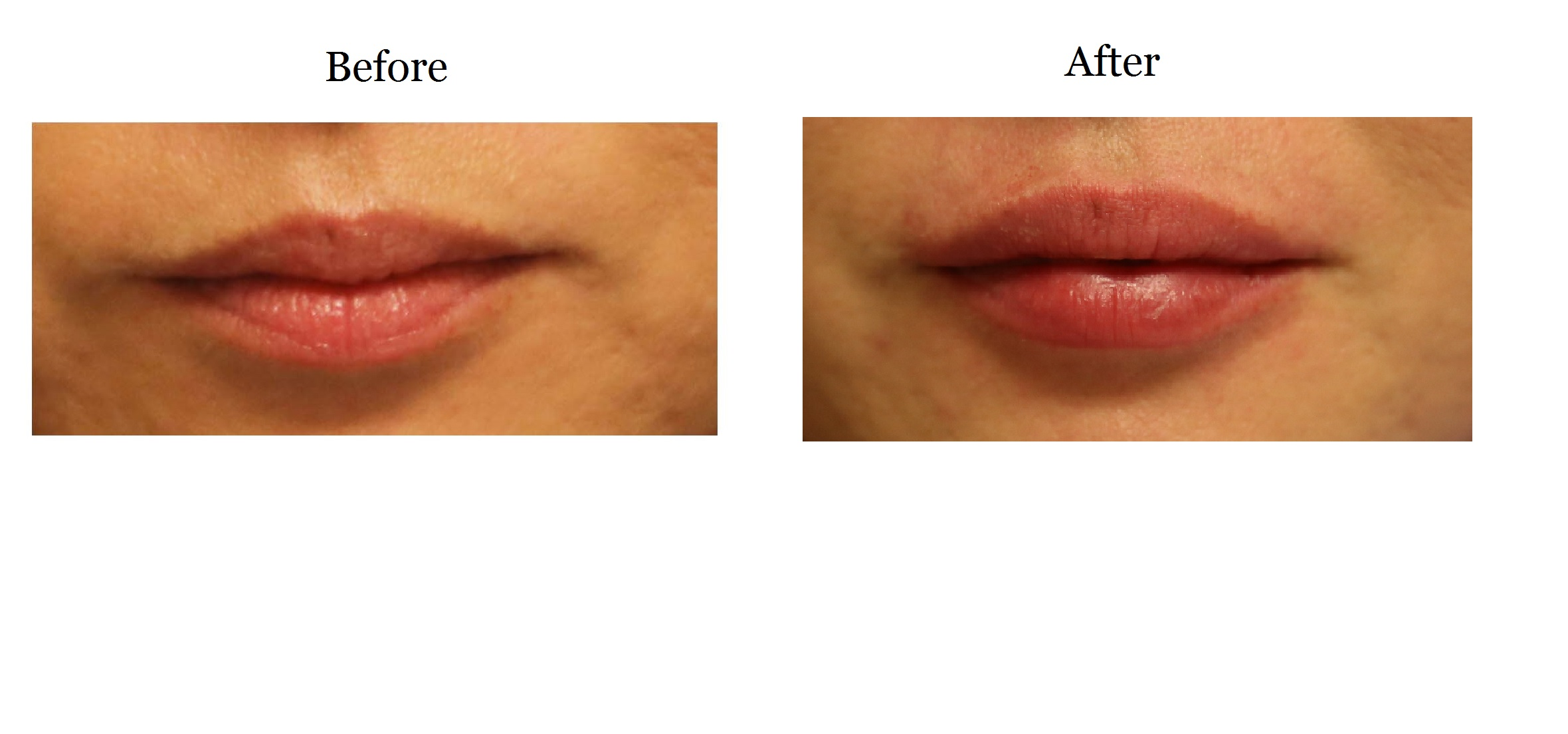 Lips_post