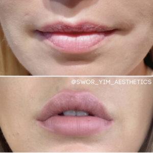 Napa Lip Fillers. Best Med Spa in Napa. Sonoma Lip Fillers. Napa Botox. Sonoma Botox Injectors. Best Botox in Napa Valley.